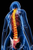 Discover the Best Alternatives to Back Surgery
